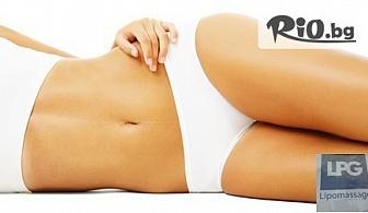 Антицелулитен LPG масаж на зона по избор или на цяло тяло, от LPG Lipomassage