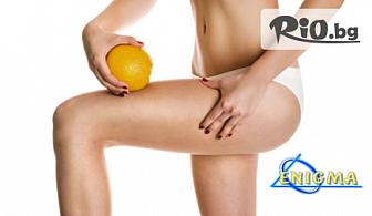 """Антицелулитна процедура на лаборатории Тегор с локално действие срещу затлъстяване и """"портокалова кожа"""" на 2 зони по избор с 63% отстъпка само за 29.90лв, от Центрове Енигма"""