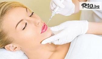 Без бръчки и с плътни устни! Поставяне на 1 мл дермален филър хиалуронова киселина Hyaluronica за запълване на бръчки или корекция на устни, от Стоматологичен кабинет д-р Лозеви