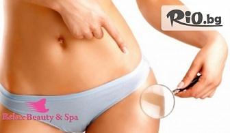 Без целулит и бричове! 1 LPG процедура на цяло тяло, от Студио за красота Relax Beauty and SPA