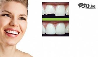 Бондинг - поставяне на фасета от висококачествен композитен материал, естетическо възстановяване на зъб, от д-р Светлана Тукусер