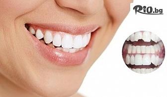 Бондинг - поставяне на фасета от висококачествен композитен материал, естетическо възстановяване на зъб c 67% отстъпка, от д-р Светлана Тукусер