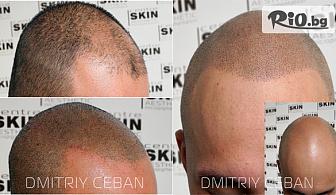Cкалппигментация за мъже и жени, от Център SKIN Aesthetic Micropigmentation