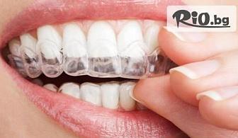 Дентален преглед, почистване на зъбен камък с ултразвук + изработване на индивидуални шини за домашно избелване + гелчета за избелване с 50% отстъпка за 139.90лв, от Ватус Дент