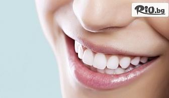 Домашно избелване на зъби с индивидуални шини, преглед и ултразвуково почистване на плака и зъбен камък, от Дентален кабинет д-р Снежина Цекова