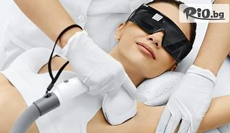 Една процедура фотоепилация за жени или мъже на зона по избор, от Салон за красота Клеопатра