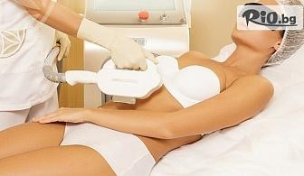 Една процедура SPL фотоепилация на зона по избор за жени, от Център за дерма-козметика и масажи Тианде