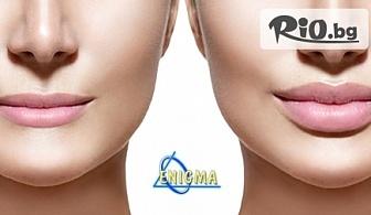 Филър за устни или попълване на бръчки с хиалуронова киселина 1 ml. Princess Filler, от Центрове Енигма