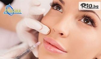 Филър за устни или попълване на бръчки с хиалуронова киселина 1ml., от Центрове Енигма
