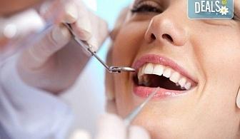 Фотополимерна пломба от висококачествен композитен материал, полиране, преглед и консултация от Sun-Dental!