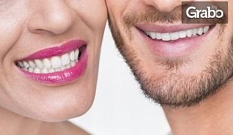 Избелване на зъби в кабинетни условия