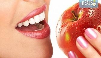 Красива усмивка с бондинг - поставяне на фотополимерна фаcета на един зъб в дентална клиника Персенк!