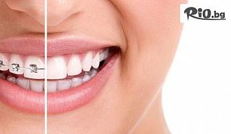 Красива усмивка със Самолигиращи метални брекети, от Биодент