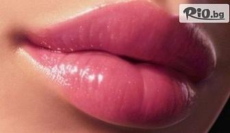 За красива визия! Обем и контур на устни, запълване на бръчки с френски дермален филър 1 ml Hyaluronica, от Стоматологичен кабинет д-р Лозеви