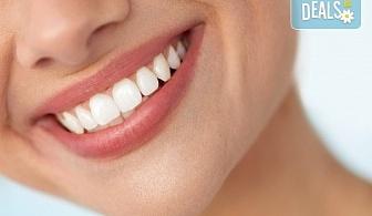 За красива и здрава усмивка! Почистване на зъбен камък с ултразвук, полиране и профилактичен преглед в Sofia Dental!