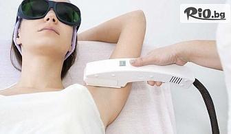 Лазерна епилация за жени на зона по избор с 50% отстъпка, от Студио за красота Орхидея