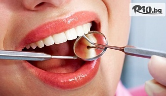 Лечение на кариес и поставяне на високачествена фотополимерна пломба, от Стоматологичен кабинет Д-р Лозеви