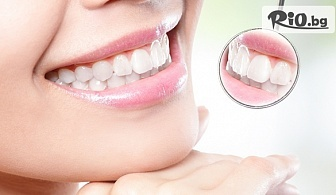 Лечение на кариес и поставяне на висококачествена фотополимерна пломба с 68% отстъпка, от Стоматологичен кабинет Д-р Лозеви