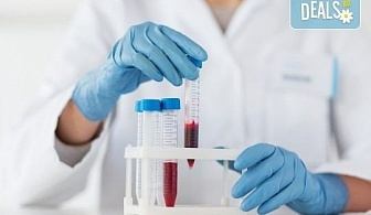 Направете си пакет изследвания за остеопороза в СМДЛ Кандиларов