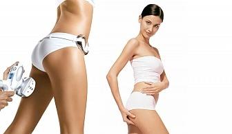 Оформете тялото си! RF + LPG и кавитация на зона по избор в Салони за красота Женско Царство!