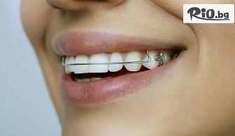 Ортодонтски преглед, консултация и анализ + изработка на снемаем ортодонтски апарат за една челюст, от Дентален кабинет Д-р Леда Андреева