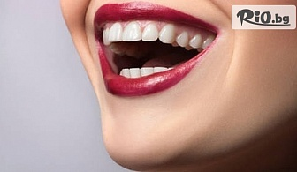 Ортодонтски преглед, консултация и план за лечениe + избелване с паста Opalescence и подарък Паста за зъби Opalescence toothpaste, от Стоматологичен кабинет Д-р Лозеви