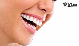 Ослепителна усмивка с Фотополимерна пломба + преглед на зъбите и план за лечение, от Дентален кабинет д-р Снежина Цекова