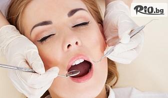 Ослепителна усмивка! Поставяне на фасета от висококачествен композитен материал, естетическо възстановяване на зъб, обстоен профилактичен преглед и план на лечение, от Sun Dental
