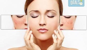 Отървете се от зачервяванията и розацеята! Лечебна терапия за куперозна кожа в салон за красота Женско царство - Студентски град или Център!