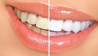 Почистване на зъбен камък с ултразвук, полиране на зъбите и обстоен дентален преглед от Д-р Ганева в Стоматологичен кабинет ДЕНТАВИТА, Добрич