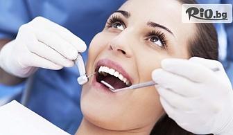 Почистване на зъбен камък с ултразвуков скалер + снемане на подробен зъбен статус, изготвяне на план на лечение, от Дентален кабинет д-р Иван Чорбаджаков