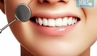 Подарете си бяла усмивка! Избелване на зъби с LED лампа, почистване на зъбен камък и полиране от Sun-Dental