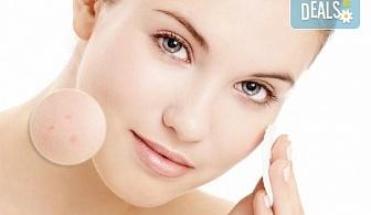 Подобрете състоянието на Вашата кожа с терапия за проблемна кожа с живи минерални глини в студио за красота Jessica