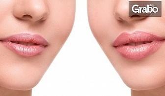Поставяне на дермален филър Apriline с хиалуронова киселина - на устни или назолабиални гънки