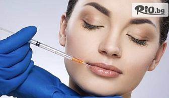 Поставяне на 1 мл дермален филър хиалуронова киселина Revolax или Dermalax за запълване на назолабиални бръчки или корекция на устни, скули, брадичка, от Tattoo Perfect