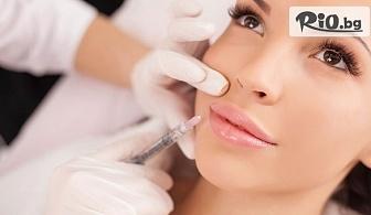 Поставяне на дермален филър на Princess в областта на лицето за секси устни или попълване на бръчки, от Биодент