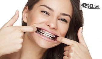 Поставяне на метални брекети на една челюст или на две + Безплатни прегледи до края на лечението, от Стоматологичен кабинет Д-р Лозеви