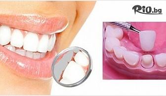 Поставяне на металокерамика, изграждане на зъб с 56% отстъпка, от Стоматологичен кабинет Д-р Лозеви