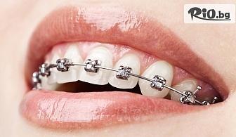 Поставяне на самолигиращи метални брекети на долна и горна челюст, от Биодент
