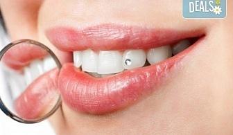 Поставяне на зъбно бижу в стоматологична клиника д-р Георгиев