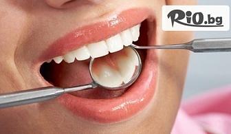 Преглед, почистване на зъбен камък, полиране и план за лечение, от Дентална клиника Туна Дент - Д-р Хаджиева