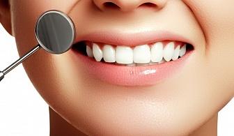 Премахнете пукнатините в зъбите и дефектите с фотополимерна фасета /бондинг/ в Дентална клиника Персенк!