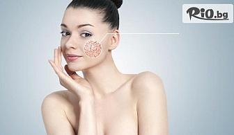 Премахване на капиляри на лице с E-LIGHT лазерна технология, от Студио за красота Хубава жена