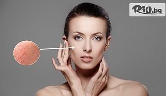 Премахване на капиляри на лице с E-LIGHT лазерна технология с 59% отстъпка, от Студио за красота Хубава жена