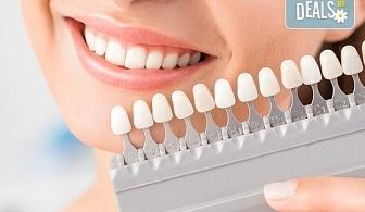 Професионално домашно избелване на зъби с индивидуални шини, профилактичен преглед, ултразвуково почистване на плака и зъбен камък в Deckoff Dental!
