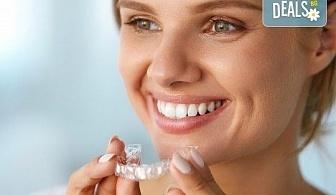 Професионално домашно избелване на зъби с индивидуални шини, профилактичен преглед, ултразвуково почистване на плака и зъбен камък и полиране на зъбите с Аir Flow в дентален кабинет Казбек!