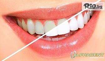 Професионално избелване за блестящо бели зъби, от Д-р Илия Дамянов, Стоматологична клиника Алфадент