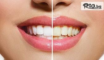 Професионално избелване с до 15 нюанса по-бели зъби с LED лампа робот Beyond Polus, от Дентална клиника Персенк