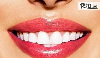 Професионално избелване с до 15 нюанса по-бели зъби с LED лампа робот Beyond Polus с 58% отстъпка, от Дентална клиника Персенк