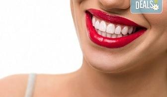 Професионално избелване на зъби с LED лампа, профилактичен преглед, ултразвуково почистване на плака и зъбен камък и полиране на зъбите с Аir Flow в дентален кабинет Казбек!